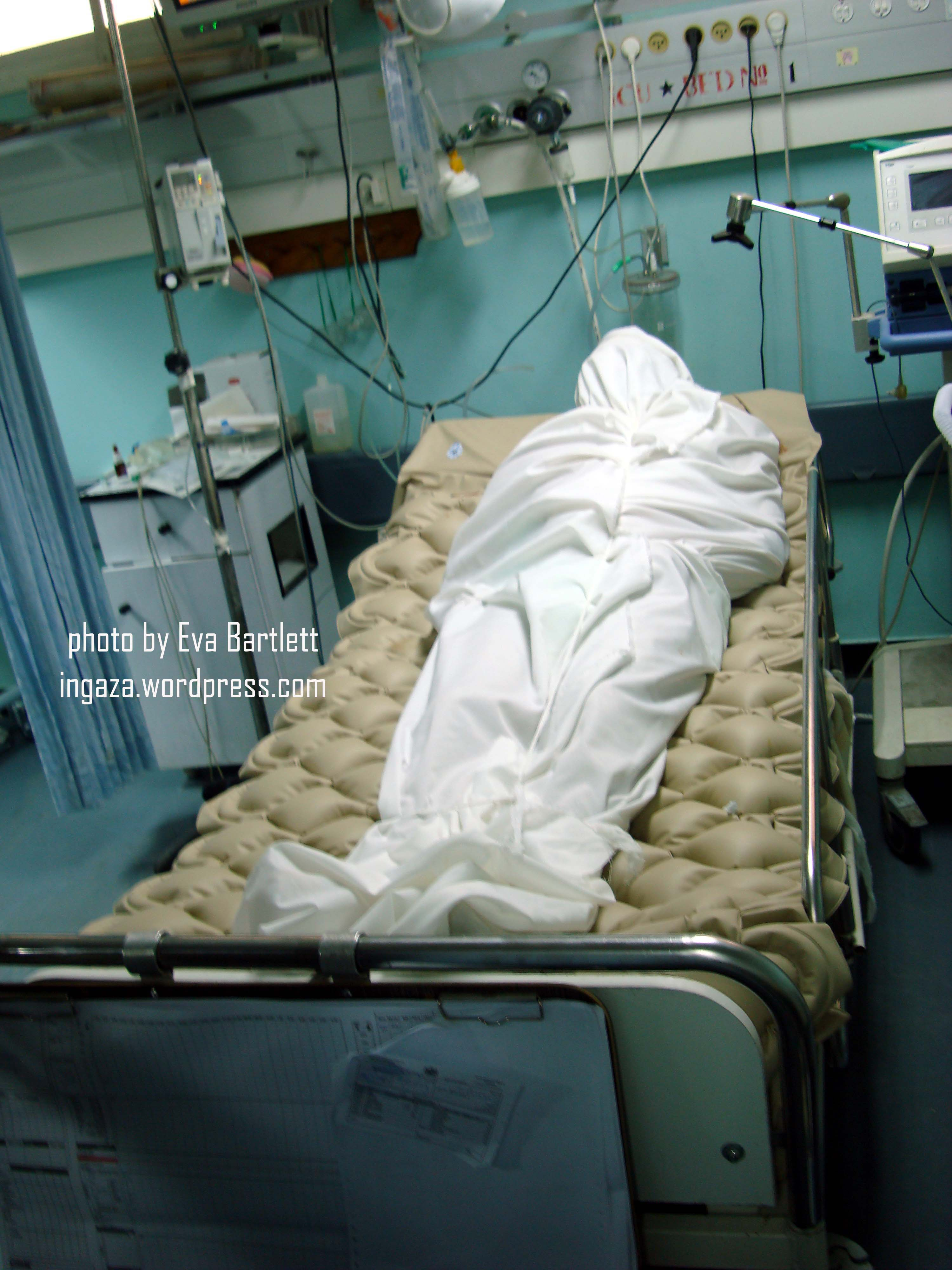 shifa icu a glimpse of hospital critical injuries in gaza