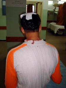 bullet-scalp