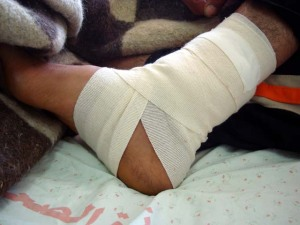 mohammed-ankle